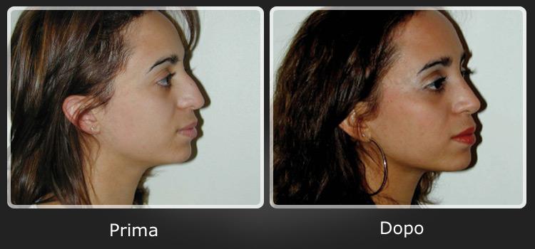 Rinoplastica chirurgia estetica del naso for Interno del naso